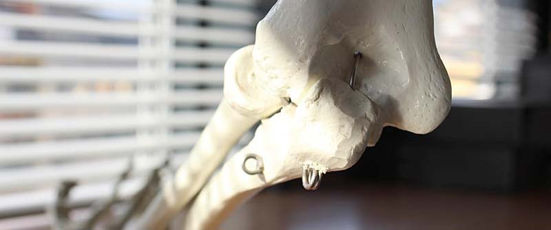 Ellenbogen-Knochen